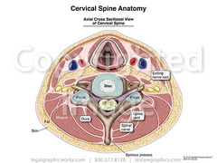 17022 cervical spine axial slice